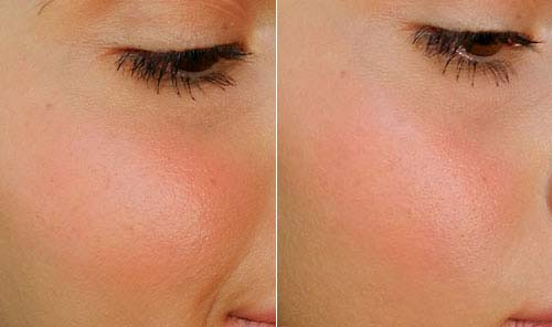 Top 7 Blush Shades For Every Skin Tone Amazing Blush Colors (1)